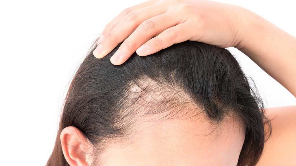 Risultati immagini per caduta capelli femminile
